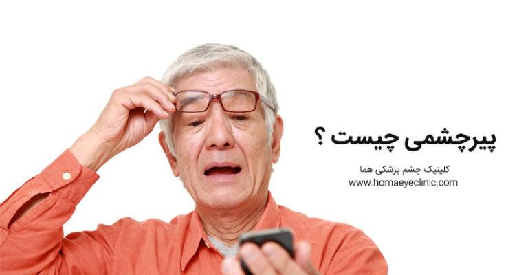 پیر چشمی چیست و چگونه درمان میشود کلینیک چشم پزشکی هما