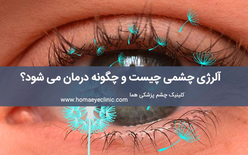 آلرژی چشمی چیست و چگونه درمان می شود؟