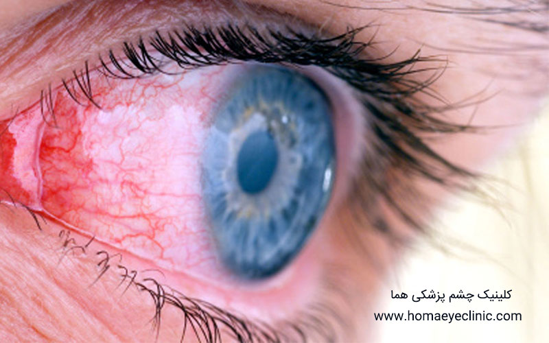 کنژنکتیویت یا التهاب ملتحمه چیست؟