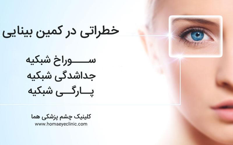خطراتی در کمین بینایی جداشدگی شبکیه، پارگی شبکیه و سوراخ شبکیه