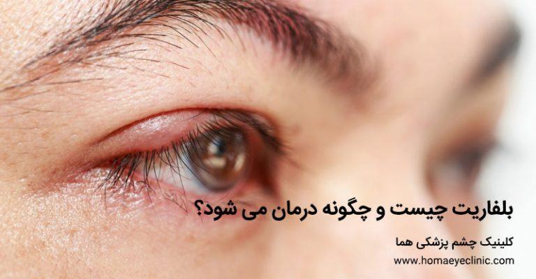 بلفاریت چیست و چگونه درمان می شود کلینیک چشم پزشکی هما