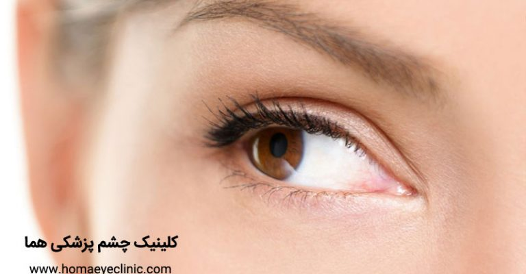 پتوز یا افتادگی پلک چیست و چگونه درمان می شود کلینیک چشم ...