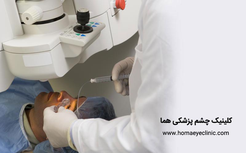 تعریف جراحی لیزری PRK