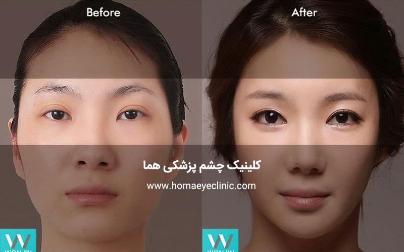 اطلاعات کامل درباره عمل جراحی زیبایی پلک یا بلفاروپلاستی
